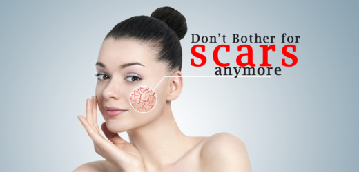Most effective ways to get rid of pimple scars